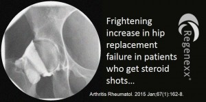 Hip Arthritis Steroid Shots Should be AVOIDED!